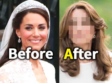 激痩せで老けたキャサリン妃  病気や拒食症の噂も…原因は?衝撃写真あり